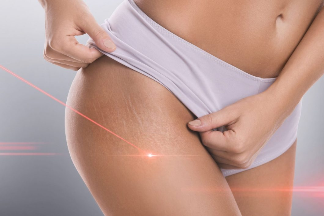 stretch mark removal laser treatment