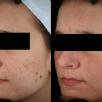 Acne Scaring Treatments Edina *Results may vary per patient.