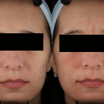 acne scaring treatments minneapolis