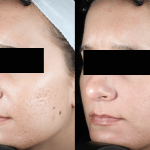 acne scaring treatments
