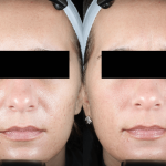 Acne Scaring Treatments Minneapolis *Results may vary per patient.