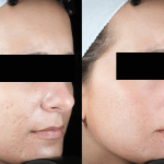 Acne Scaring Treatments *Results may vary per patient.