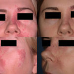 port wine stain treatment minneapolis