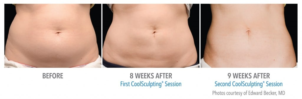 Coolsculpting In Mn Zel Skin