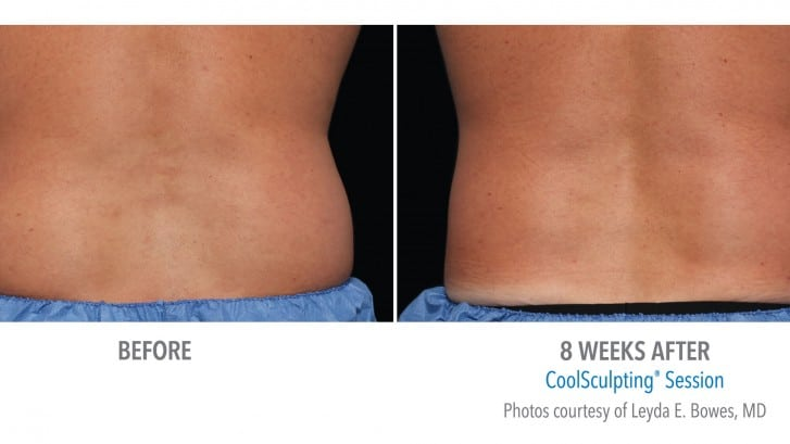 CoolSculpting Minneapolis *Results may vary per patient.