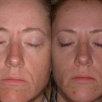 dermal fillers minneapolis