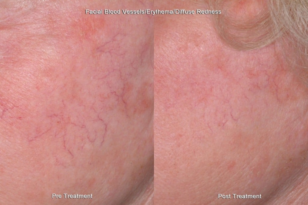 Cure facial redness watts