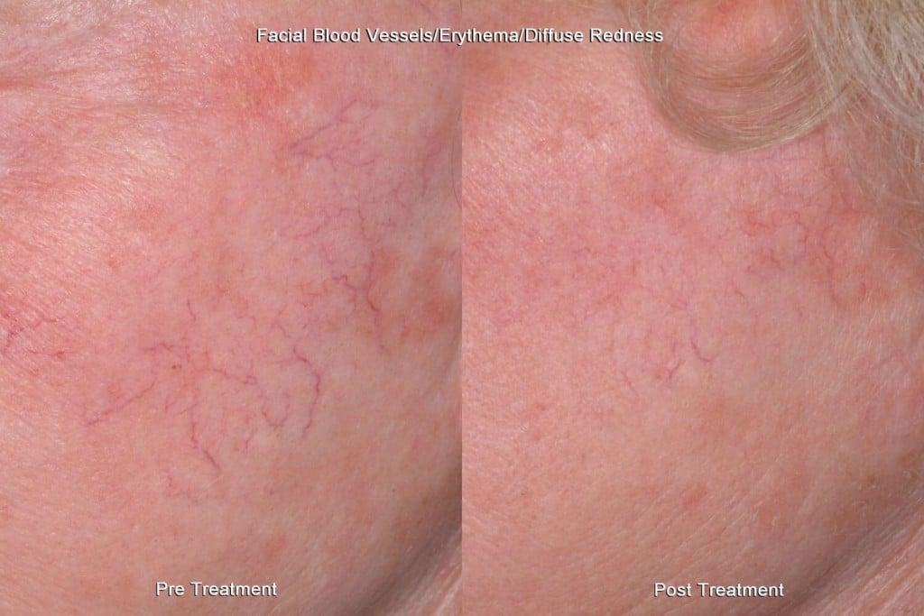 redness treatment for facial