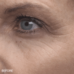 md complete anti-aging