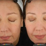 chemical peels edina
