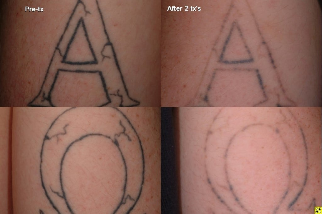 100 laser tattoo removal london as amazing cover up