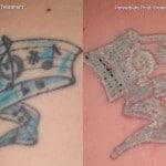 tattoo removal minneapolis