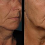 ultherapy treatments minneapolis