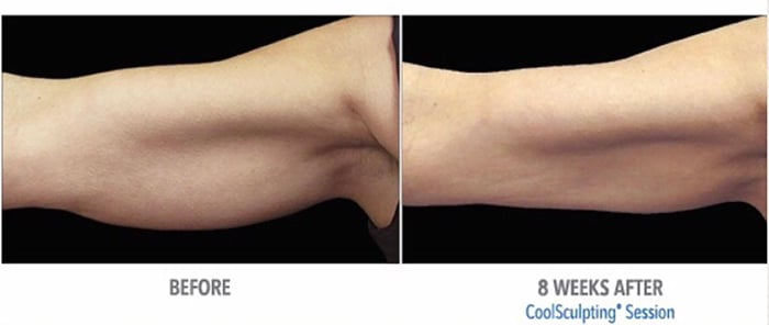 Coolsculpting Fat Reduction In Edina Amp Plymouth Mn