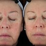 redness treatment minneapolis