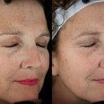 sun damage treatment minneapolis