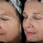 dark pigment treatment