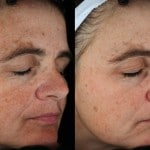 age spot treatments minneapolis