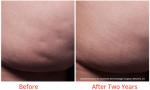 cellulite treatment minneapolis