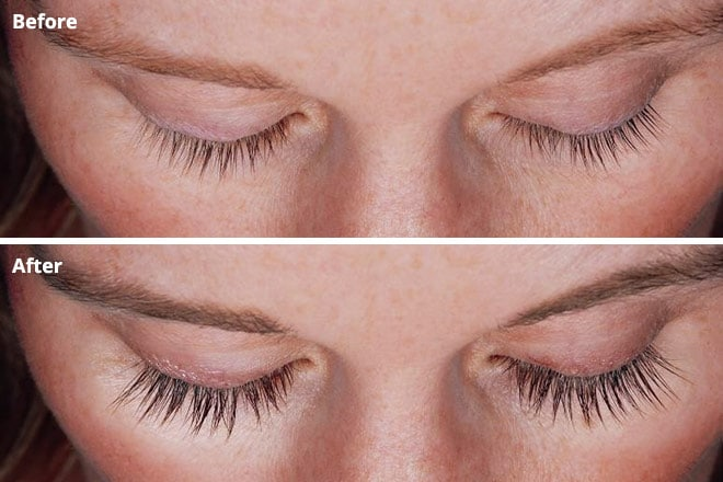 eyelash thickener Latisse before and after