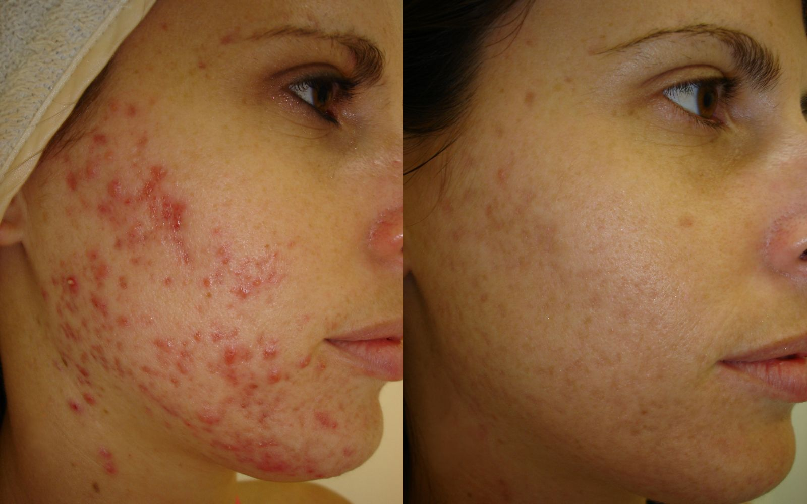 Before And After Acne Zel Skin