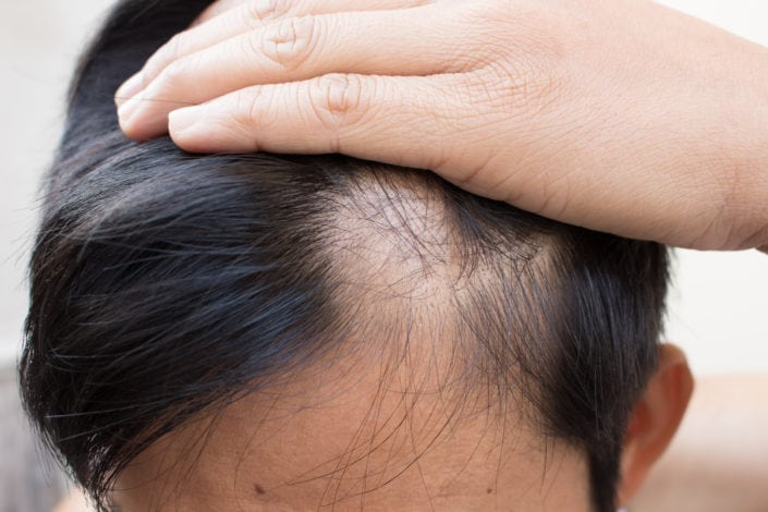 alopecia treatment minneapolis