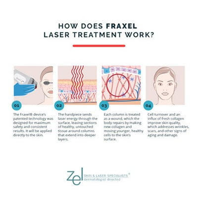 Fraxel treatments at Minneapolis, Edina, and Plymouth's Zel Skin involve the use of a handheld laser device to improve skin quality by triggering collagen production.