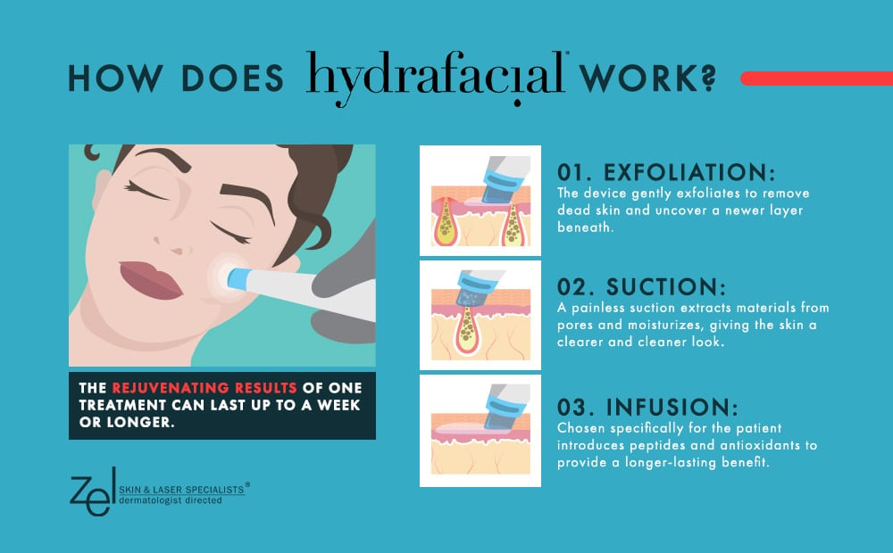 Get three benefit in one treatment with HydraFacial® at Plymouth's Zel Skin & Laser Specialists.