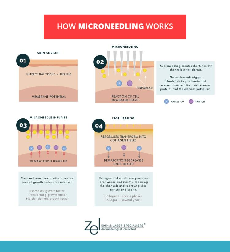 Discover how microneedling works at the Minneapolis area's Zel Skin works, from consultation to treatment to ultimate results.