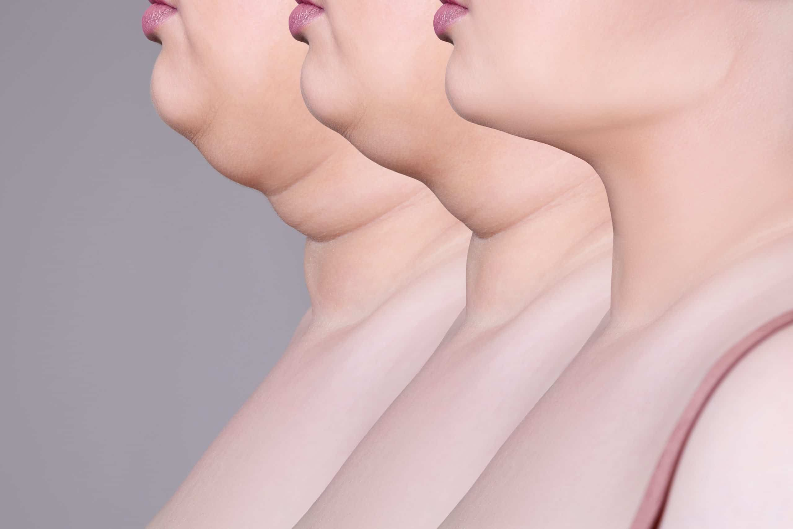 Kybella for double chin - submental fat